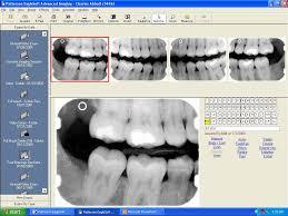 Valley Endodontics Digital Radiography